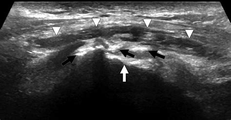 Imaging and management of greater trochanteric pain